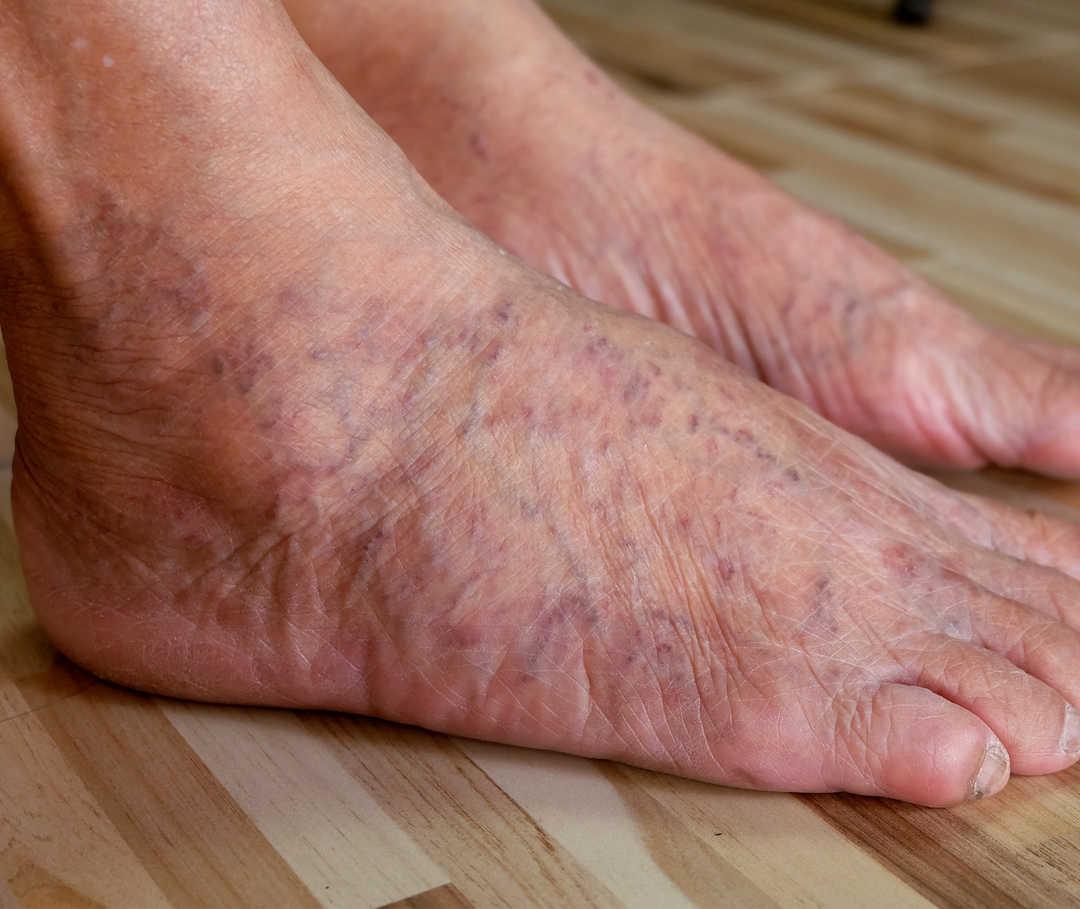 Das als bein rechtes linke dicker Ein Bein